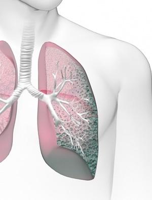 İdiyopatik Pulmoner Fibrozda Kognitif Bozukluk