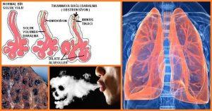 Kronik Akciğer Hastalıklarında (KOAH) Bilişsel Bozukluklar